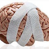 Los Mejores Abogados en Español de Lesiones Cerebrales Para Mayor Compensación en Bell California